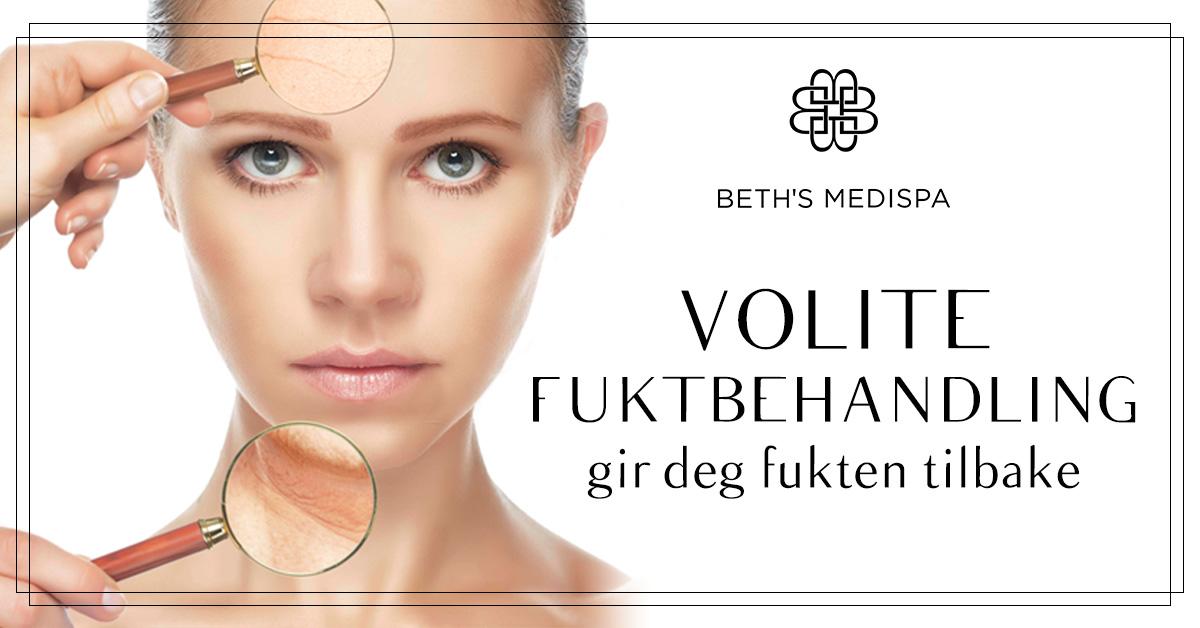 Volite-Fuktbehandling_Blog-1